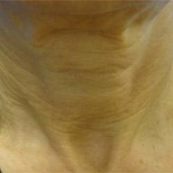 laser-skin-tightening-after