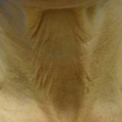 laser-skin-tightening-before