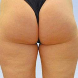 caci-ecm-cellulite-treatment-after-325x250