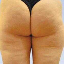 caci-ecm-cellulite-treatment-before-325x250
