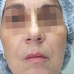 clearlift-face-after