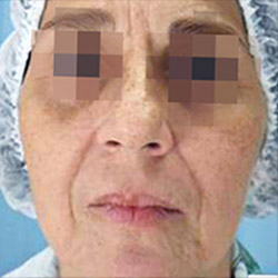 clearlift-face-before