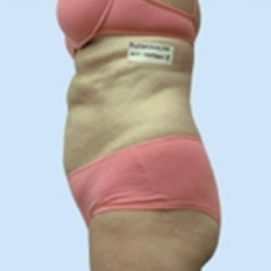 i-lipo-fat-reduction-2-after