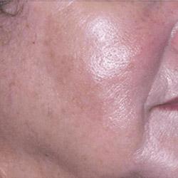 laser-pigmentation-removal-after-250x250