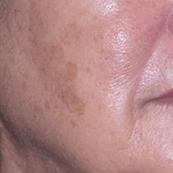 laser-pigmentation-removal-before-250x250