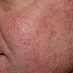 laser-red-vein-removal-after-250x250