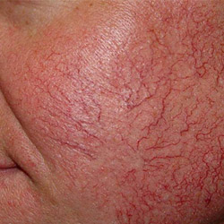 laser-red-vein-removal-before-250x250