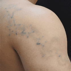 laser-tattoo-removal-after
